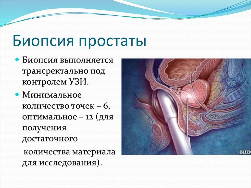 Сделать биопсию простаты в новосибирске