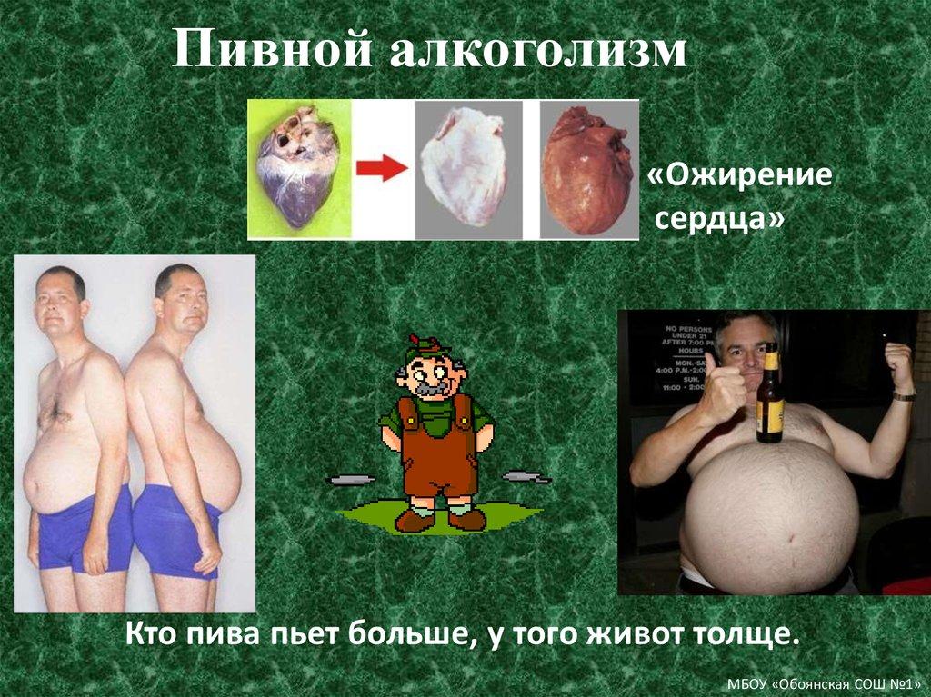 Чем грозит пивной алкоголизм