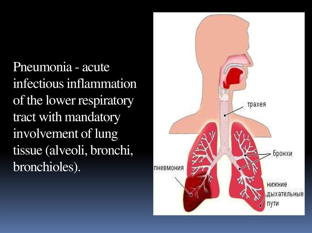 Pneumonia - acute infectious inflammation of the lower respiratory tract with mandatory involvement of lung tissue (alveoli,