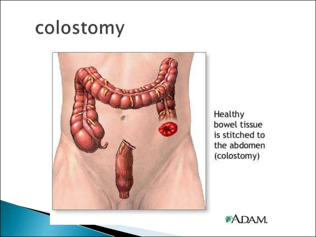 Clinical Anatomy Of Abdominal Cavity Online Presentation