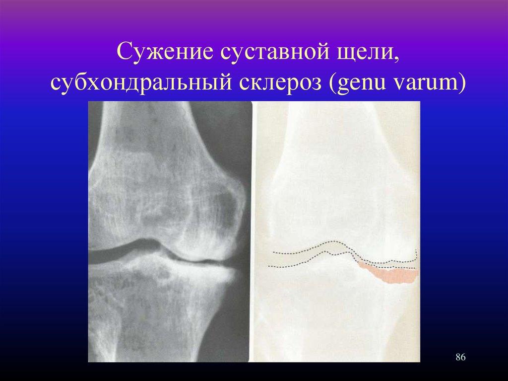 a health report osteosclerosis
