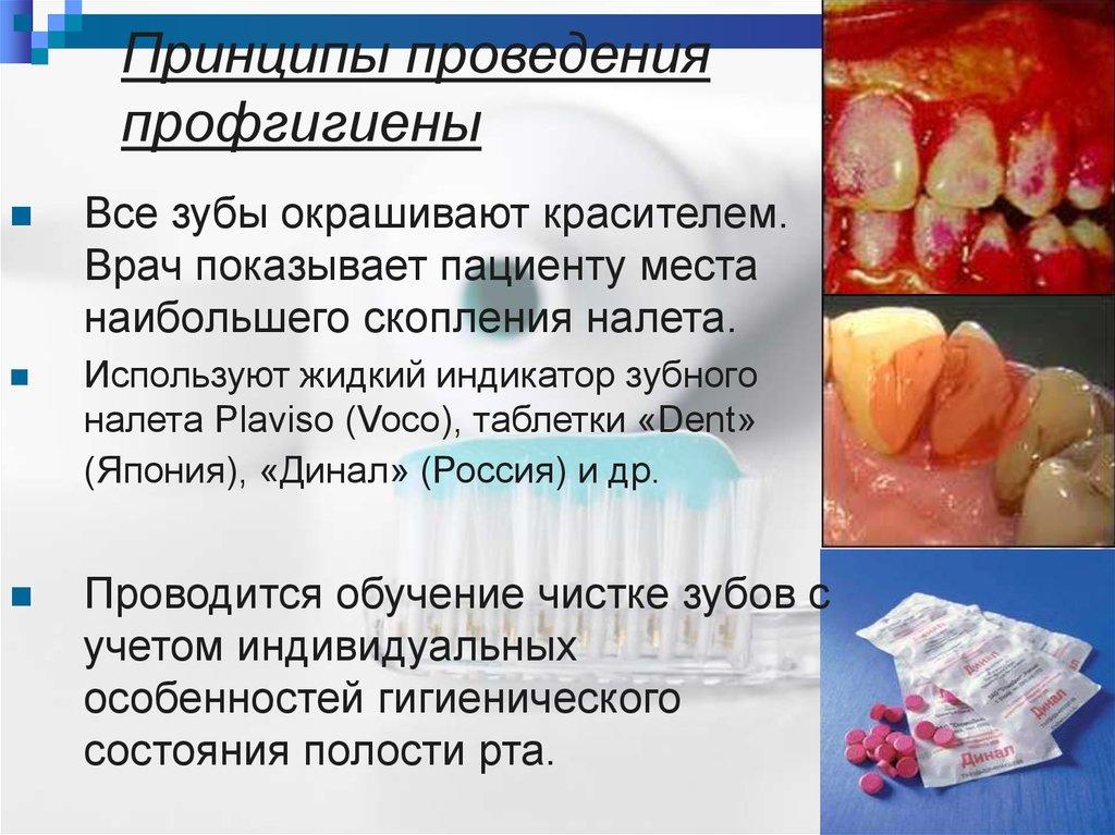 Экзогенная профилактика кариеса зубов