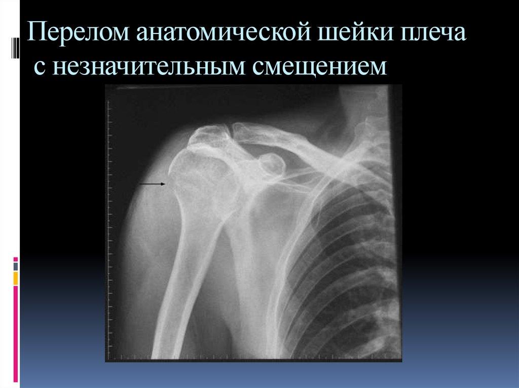 Перелом шейки левой плечевой кости