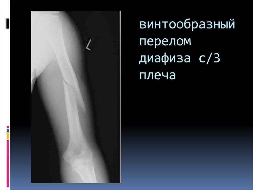 Диафизарные переломы плечевой кости