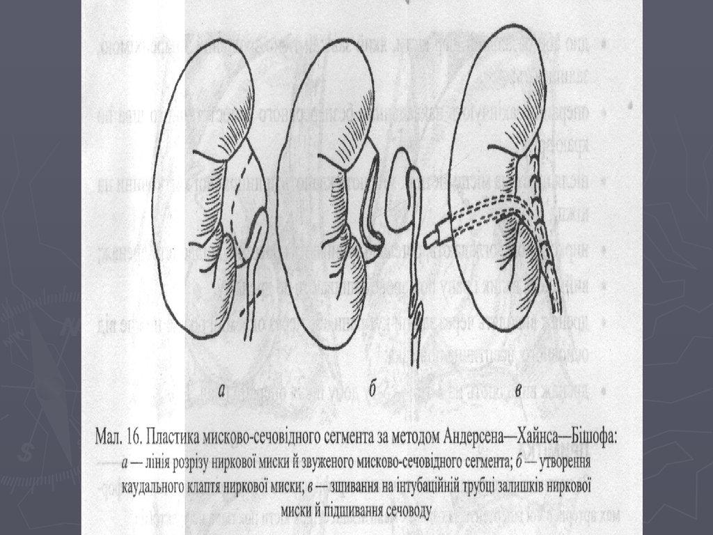 Нефроптоз отзывы