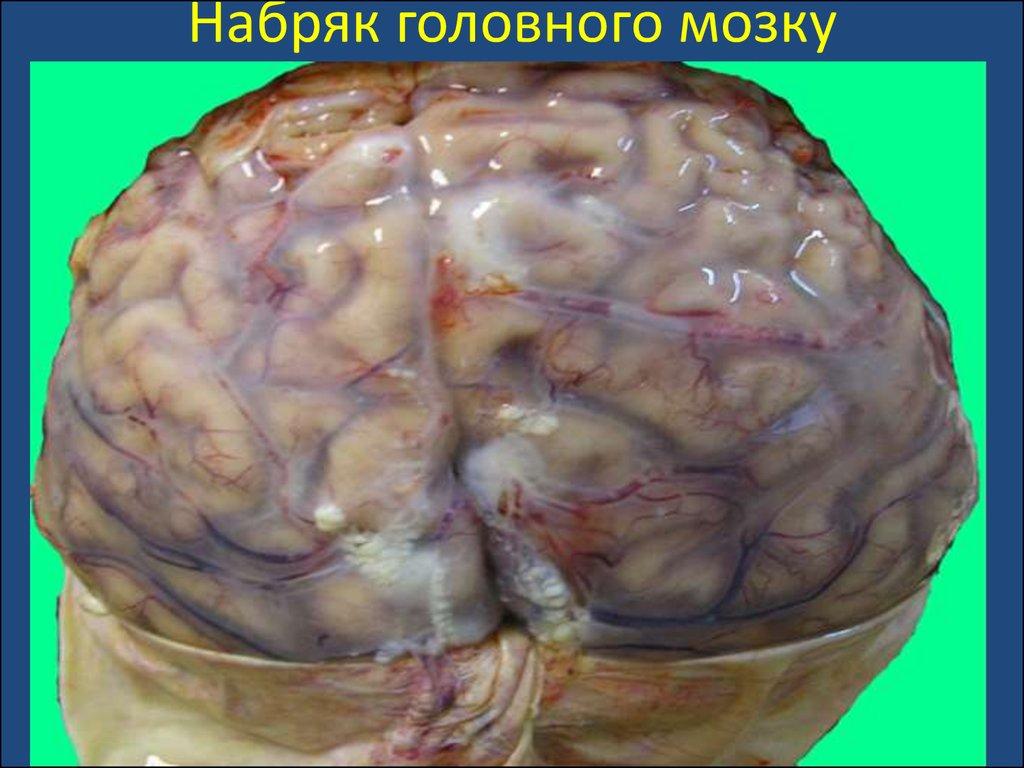 картинки отек головного мозга любом случае