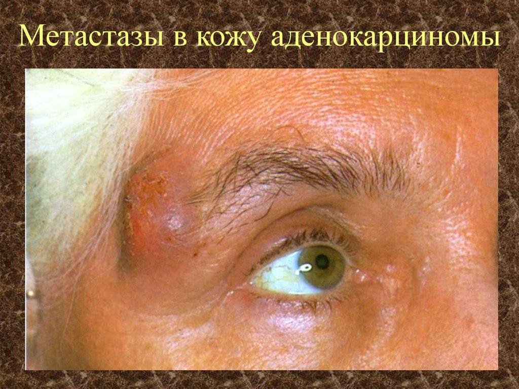 Метастазы в кожу головы