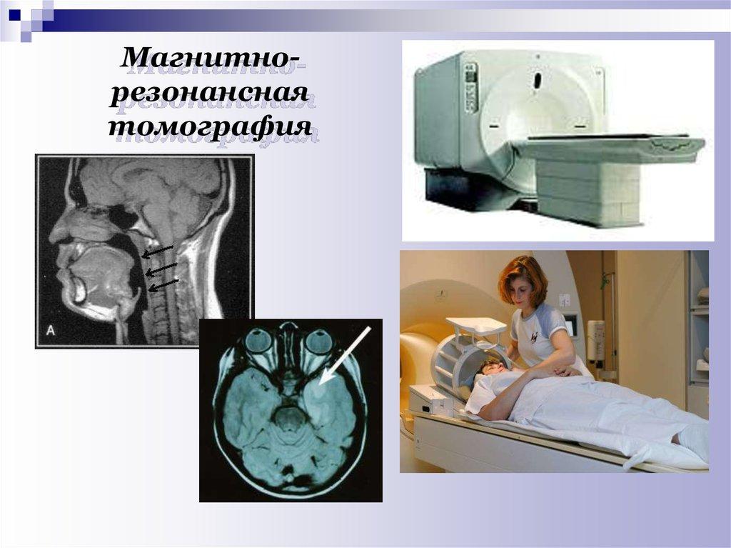 Магнитно резонансная томография системы