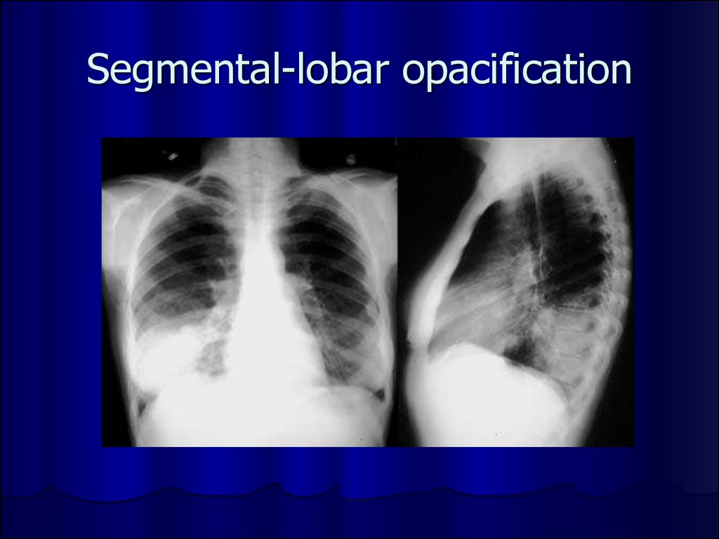 Segmental-lobar opacification