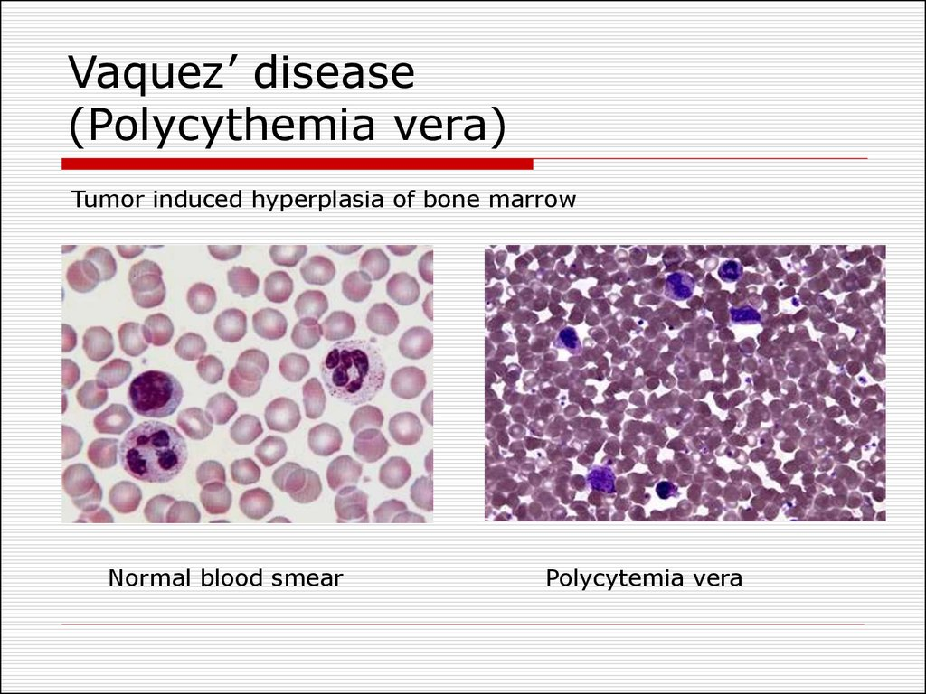 red blood cells essay Sickle-cell disease sickle-cell disease, also called sickle-cell anaemia, is basically a hereditary blood disorder that is characterized through red blood cells (rbcs), which take on a rigid, abnormal sickle shape.