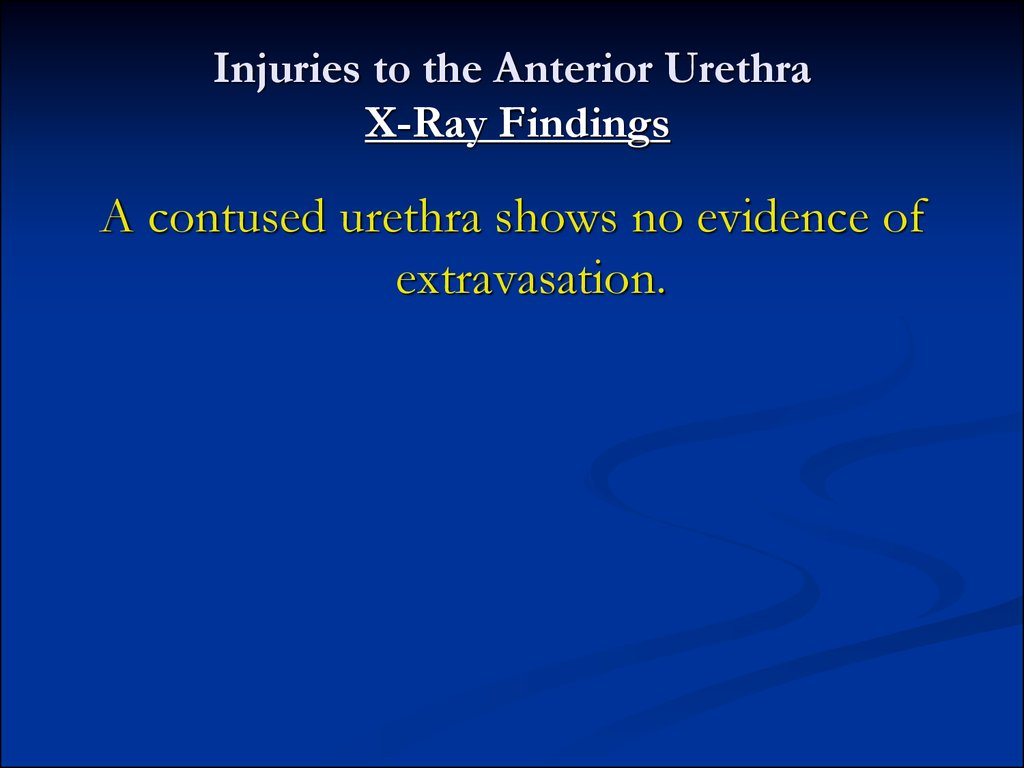 Injuries to the Anterior Urethra X-Ray Findings