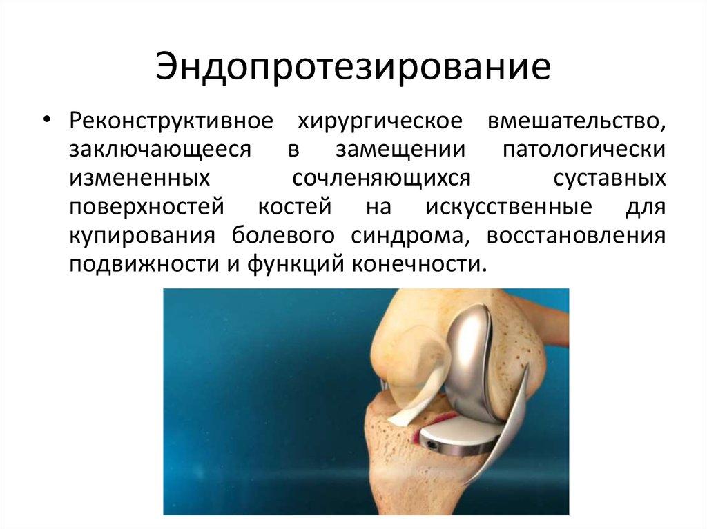 Доклад эндопротезирование коленного сустава 7267