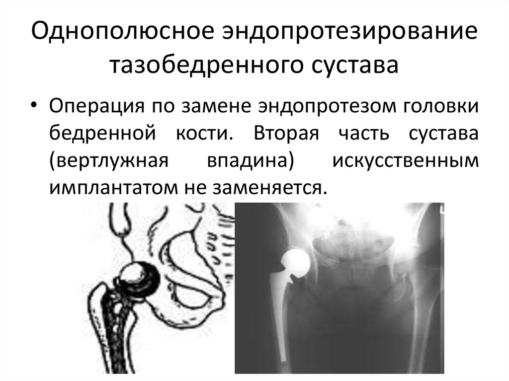 Презентация протезирование суставов профилактика болей в суставах рук
