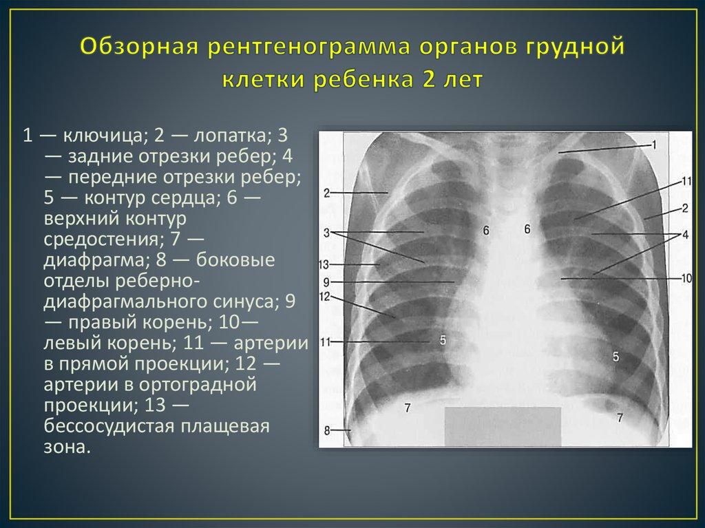 рентгенография органов грудной клетки в выходной в новосибирске термобелье оптом, термобелье