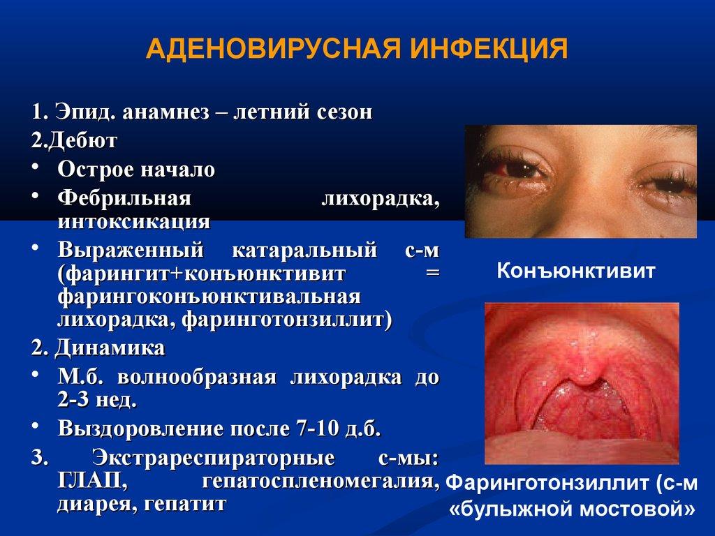 лечение микоплазмы у женщины препараты