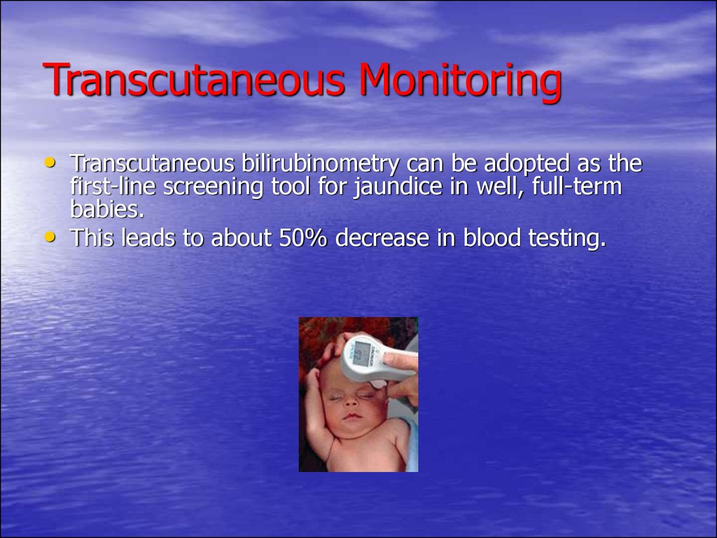 Transcutaneous Monitoring