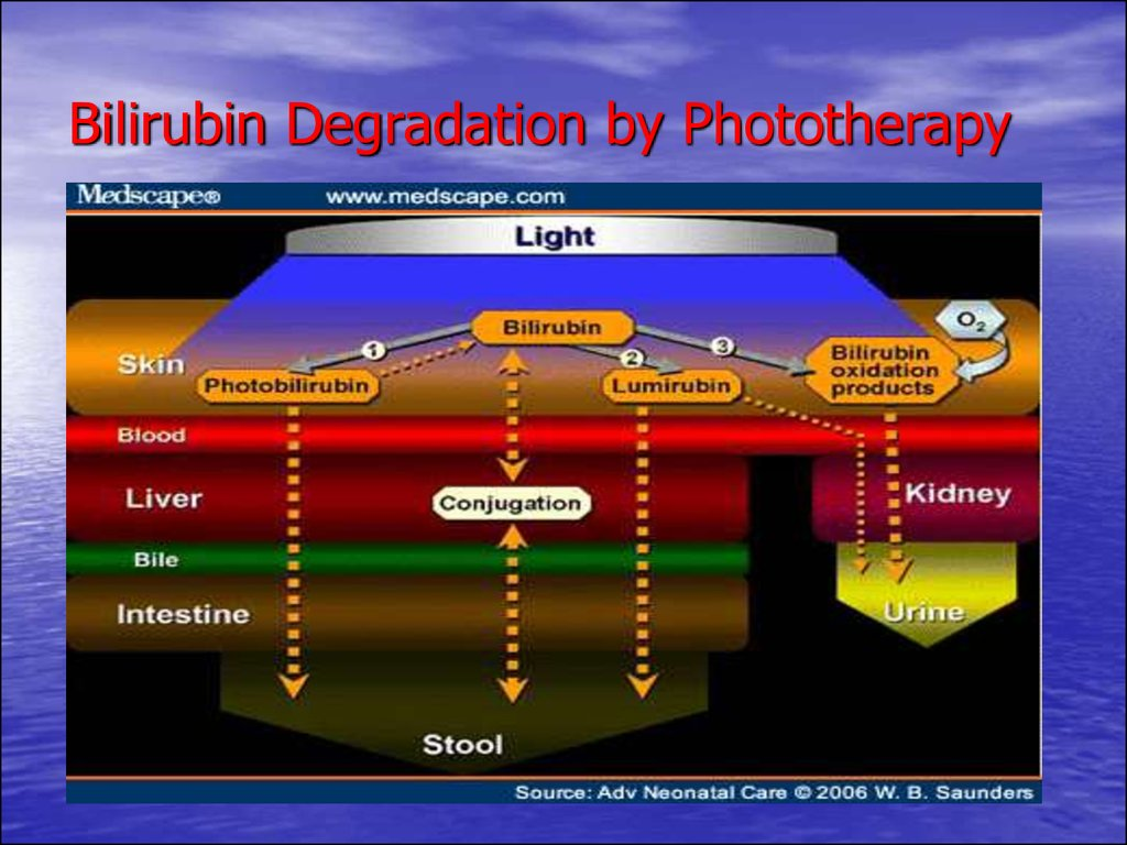 Bilirubin Degradation by Phototherapy