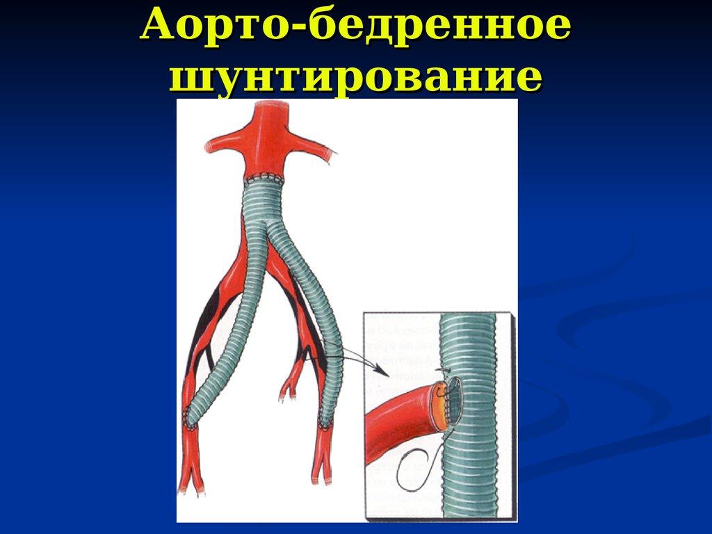 Аорто бедренное шунтирование ход операции