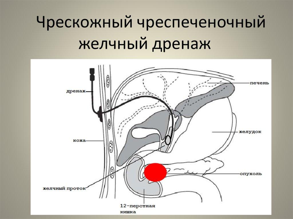 Дренаж желчевыводящих путей