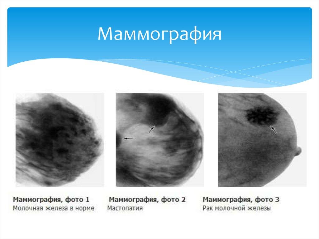Маммография это исследование молочных желез