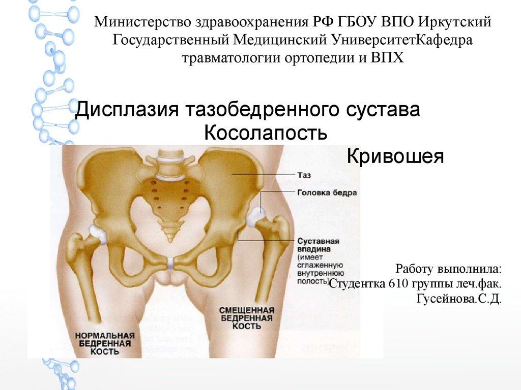 Ортопедия дисплазия тазобедренных суставов узелки и боли в суставах