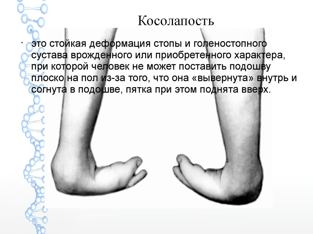 какую группу инвалидности дают при артрозе коленных суставов 3 степени
