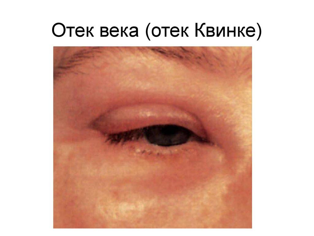 Когда проявлчется отек слизистой при аллергии