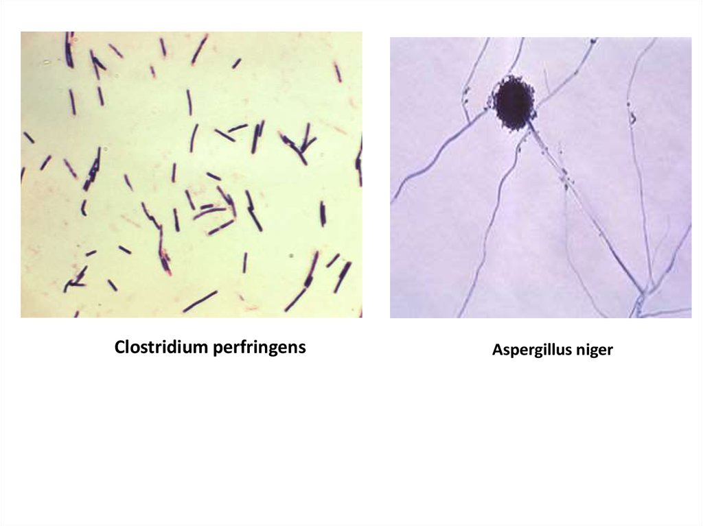clostridium perinfrengens Clostridium perinfrengens essayclostridium perfringens clostridium perfringens (formerly known as c welchii, or bacillus welchii) is a.