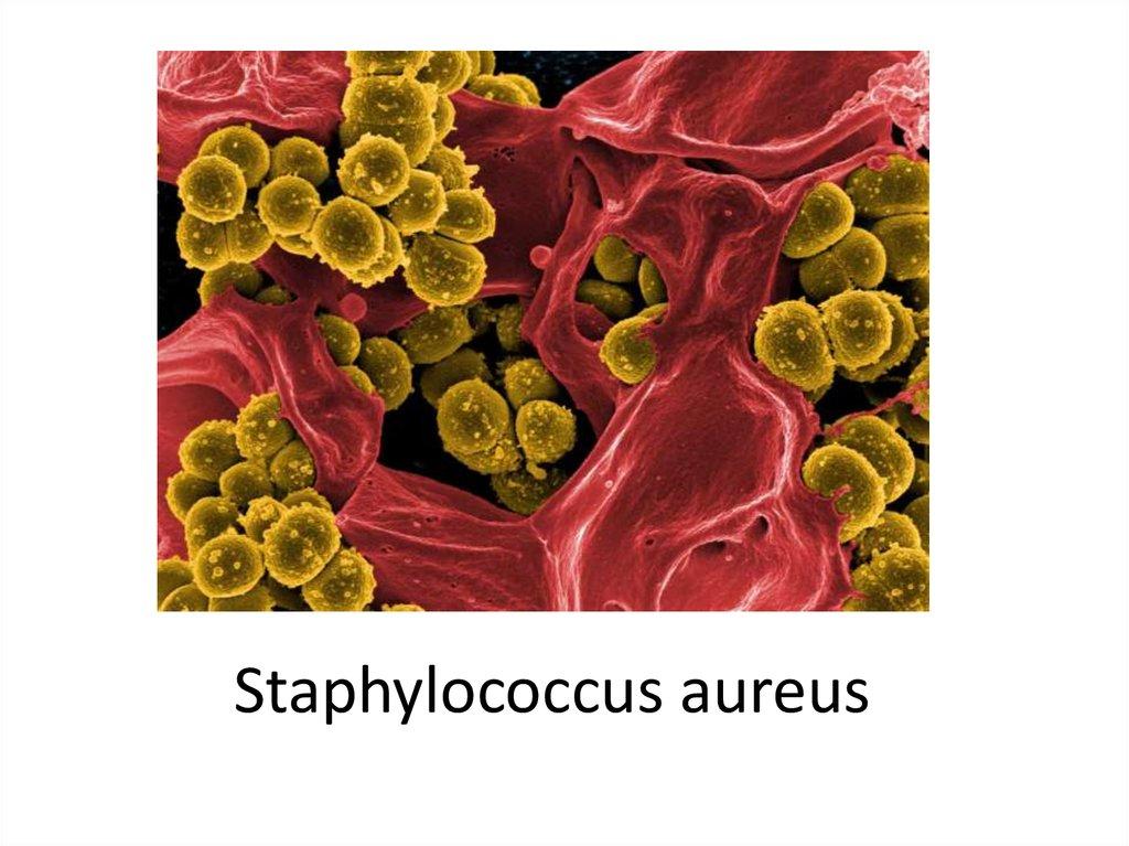 Staphylococcus aureus и простатит лечение простатита сумма