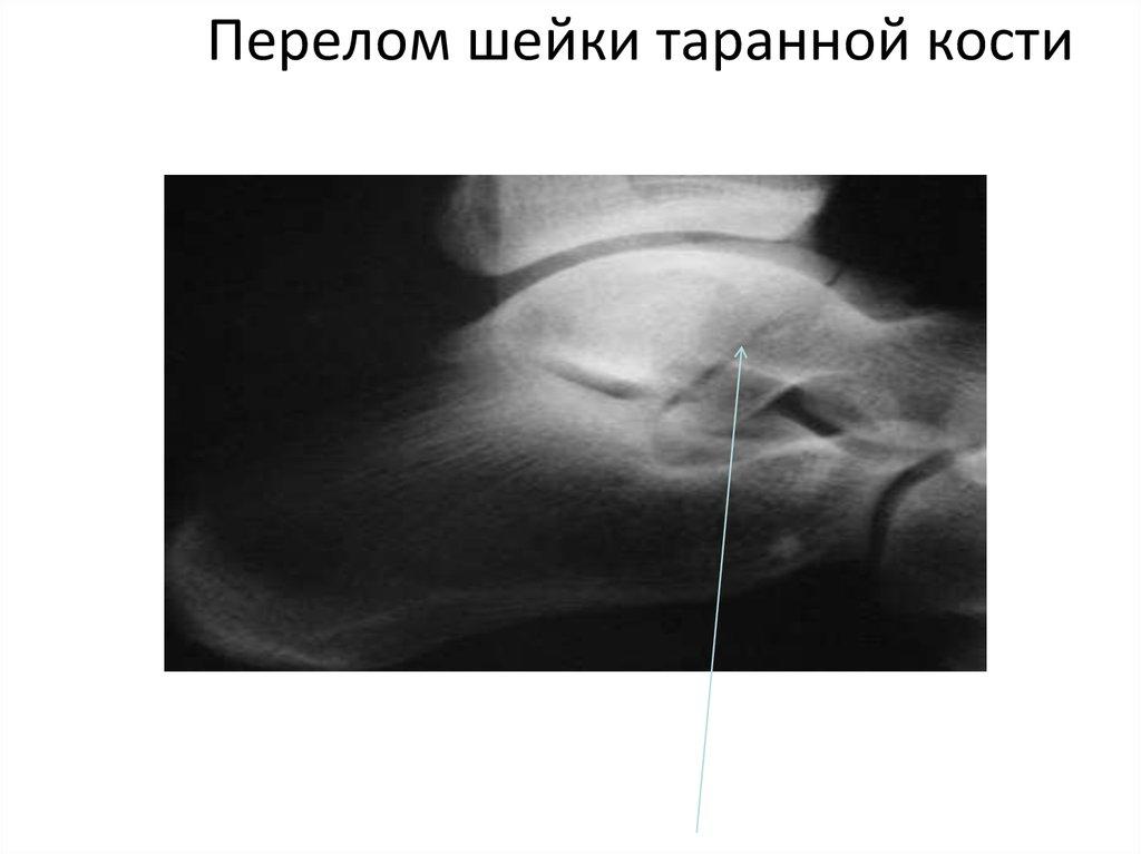 Перелом таранной кости без смещения
