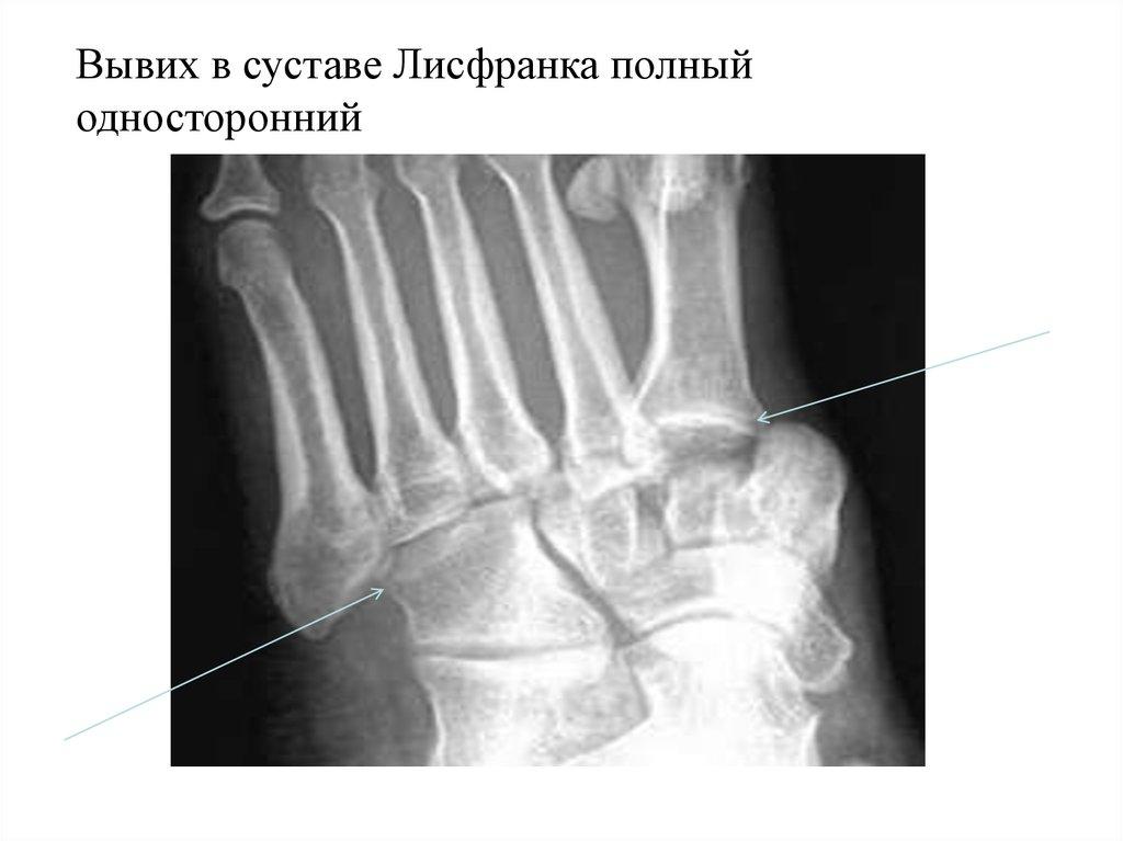 Перелом в суставе лисфранка немецкие эндопротезы лучезапястного сустава