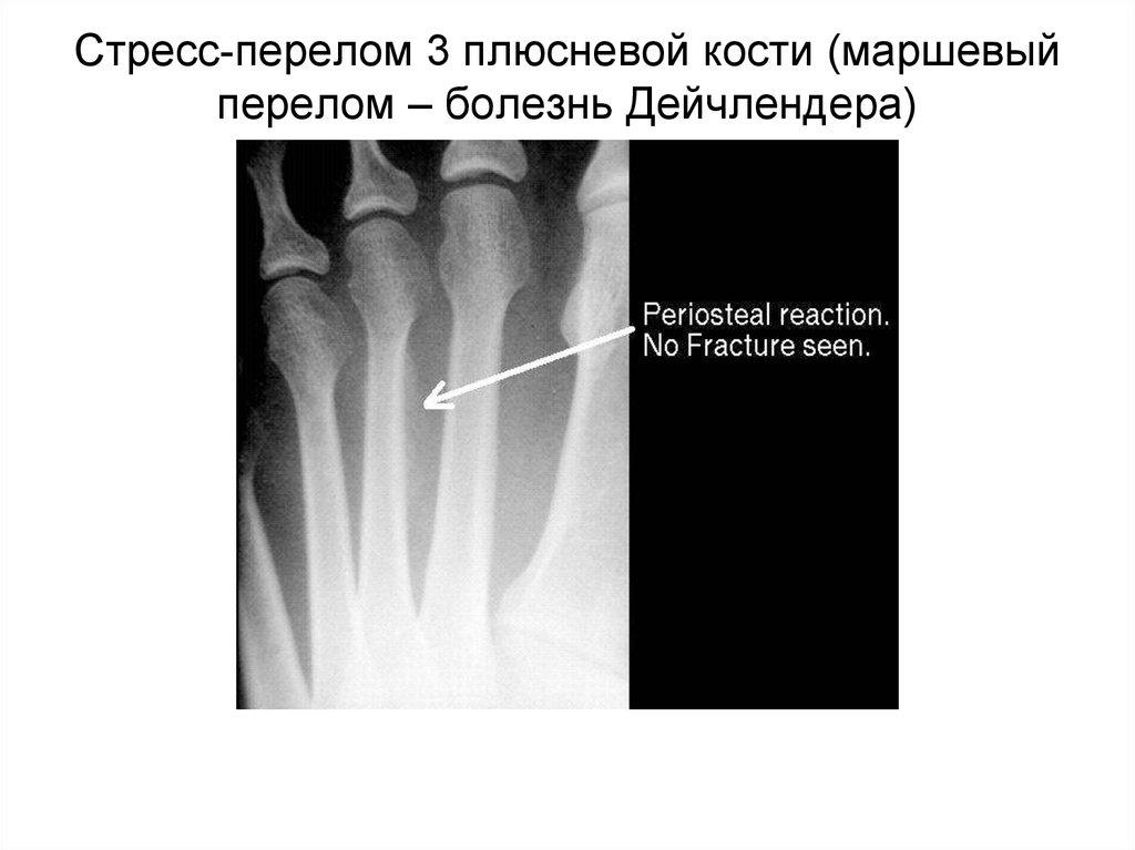 Стрессовый перелом кости