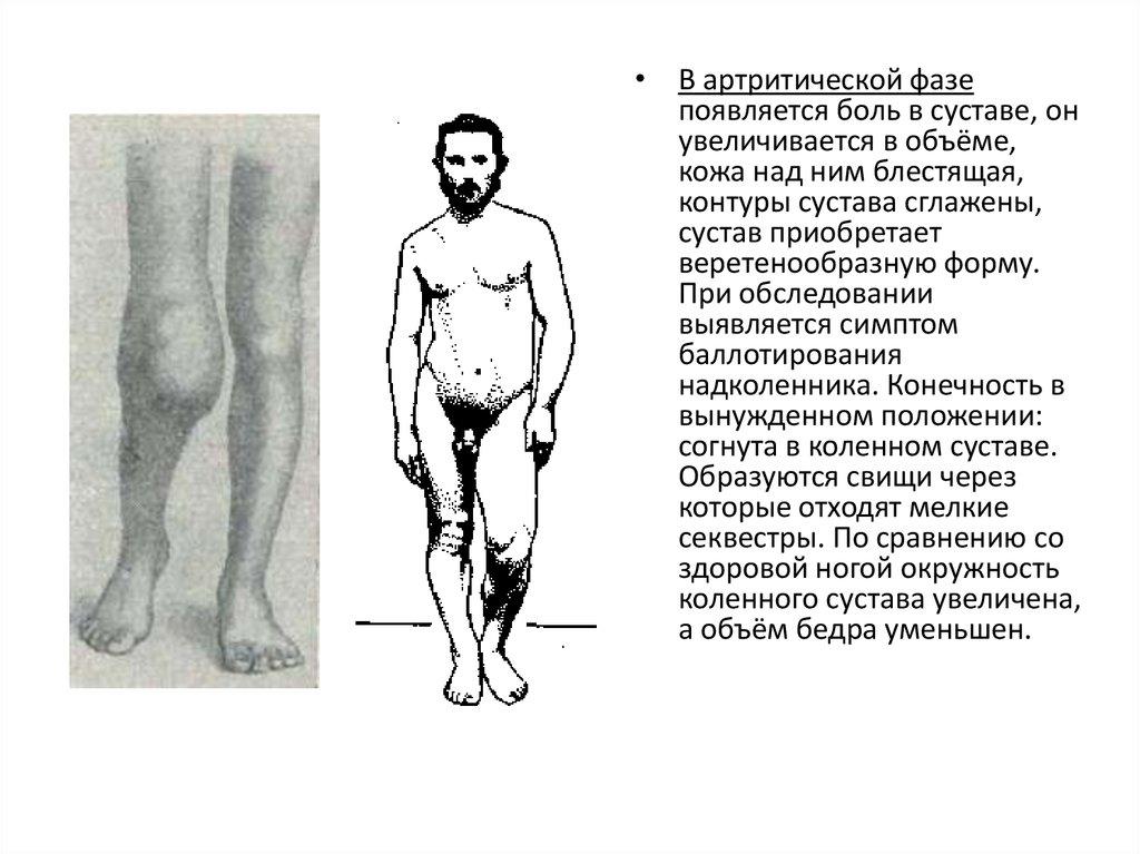 Для продромального периода характерно боли в суставах бандаж на коленный сустав фото