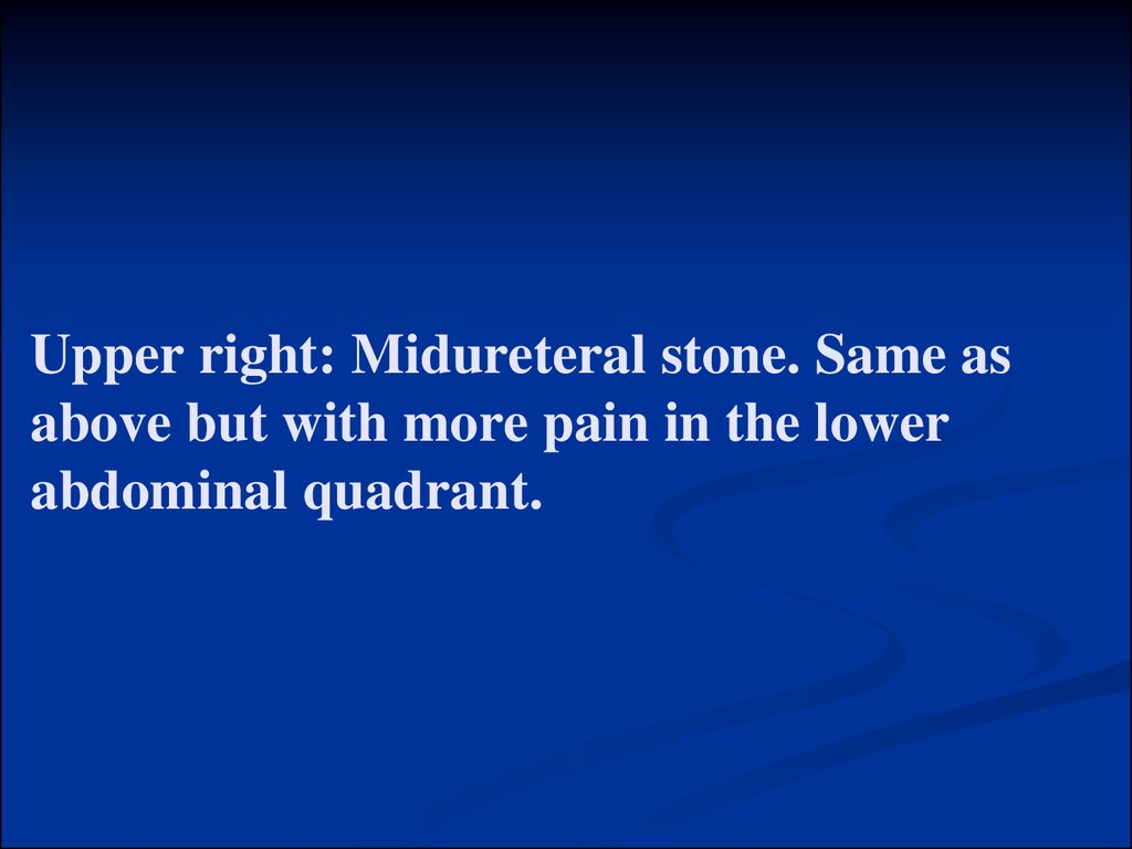 Upper right: Midureteral stone. Same as above but with more pain in the lower abdominal quadrant.