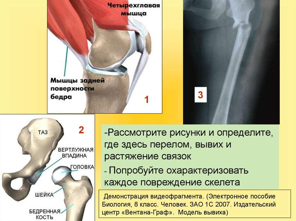 Что ощущает человек при вывихе сустава суставная боль в колене препараты