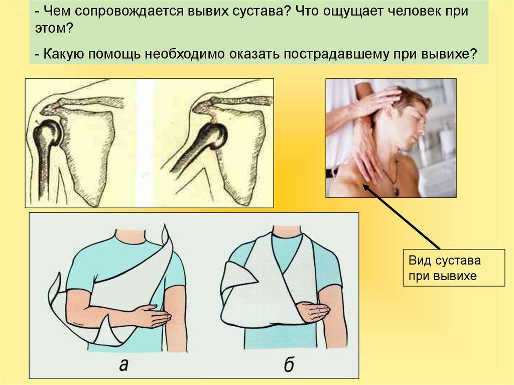 Первая медицинская помощь при вывихе сустава боли в суставах на перемену погоды