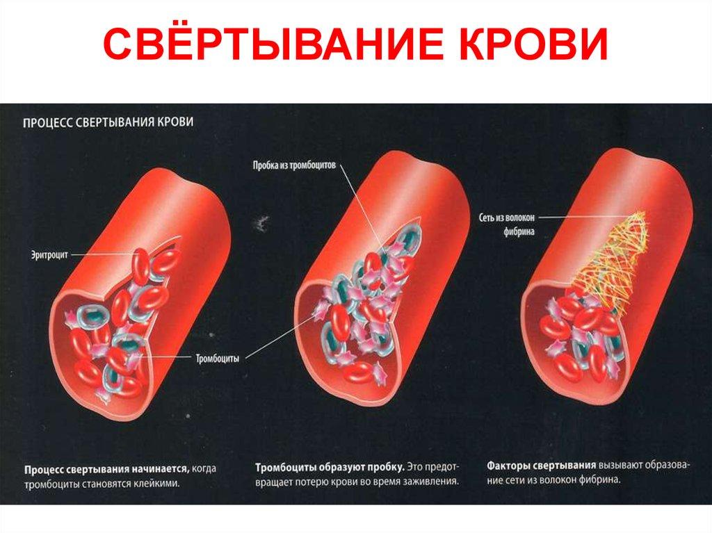 Свертывание крови картинка