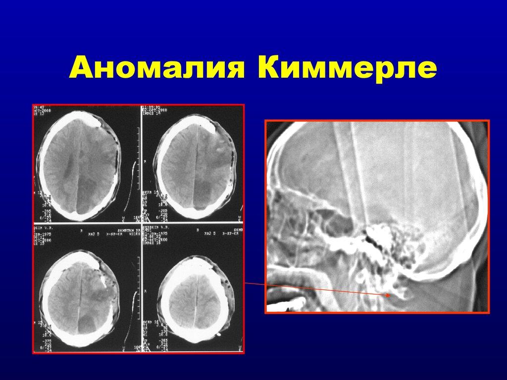 Массаж при аномалии киммерли