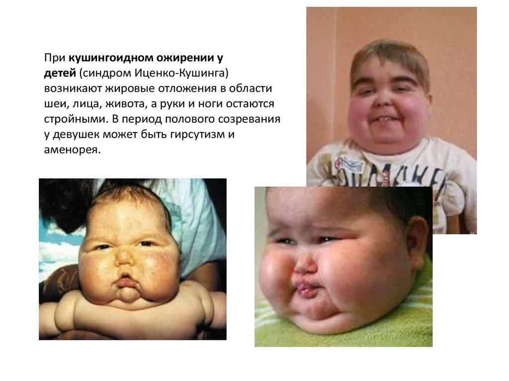 Ожирение уей, диета дляей с ожирением