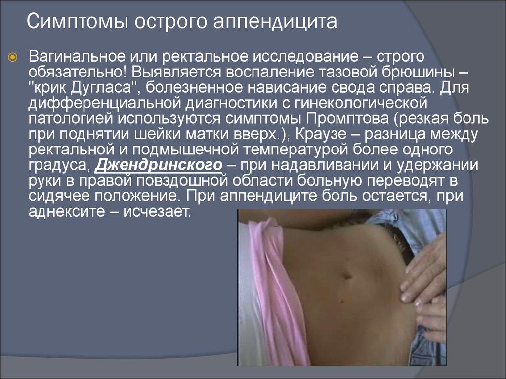 Аппендикс симптомы у женщин