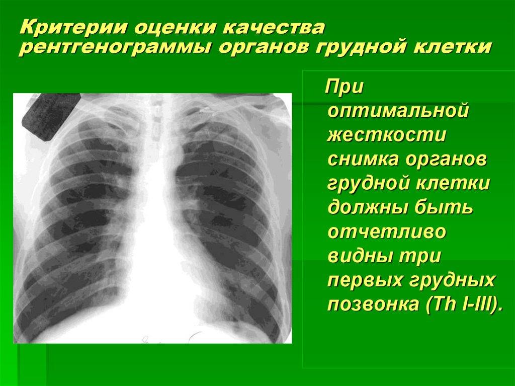 современной детской рентгенография органов грудной клетки в выходной в новосибирске ответ Татьяна