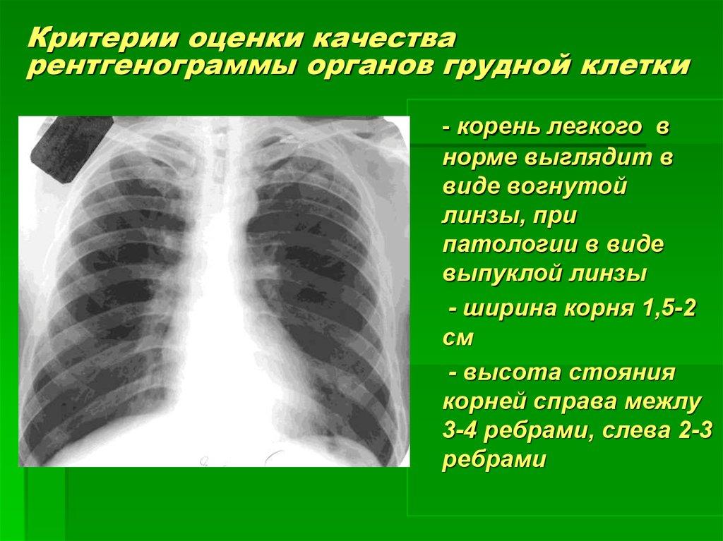 Туберкулез корень