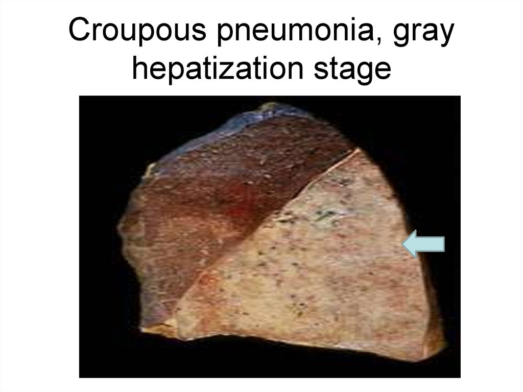 Croupous pneumonia, gray hepatization stage