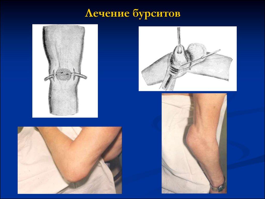 Заболевание суставов бурсит лечение