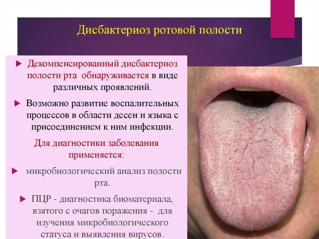 Синдром поражения кожи и слизистых