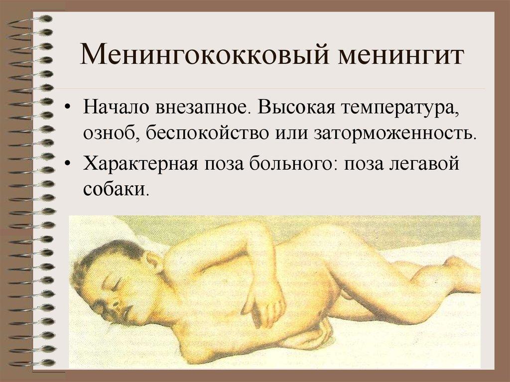 Последствия менингита у ребенка