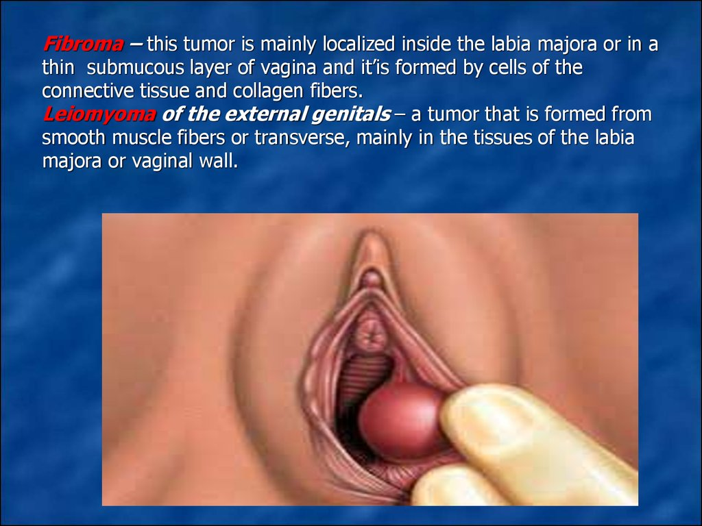 Fibroma – this tumor is mainly localized inside the labia majora or in a thin submucous layer of vagina and it'is formed by cells of the connective tissue and collagen fibers. Leiomyoma of the external genitals – a tumor that is formed from smooth m