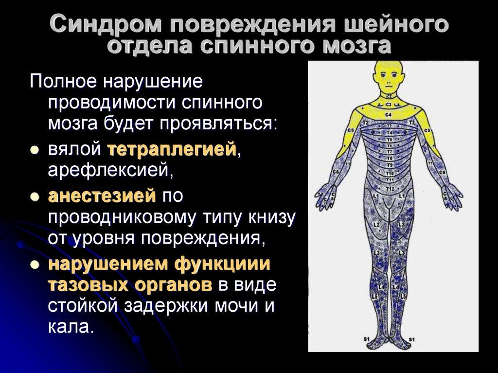 Травма позвоночника и спинного мозга по мкб