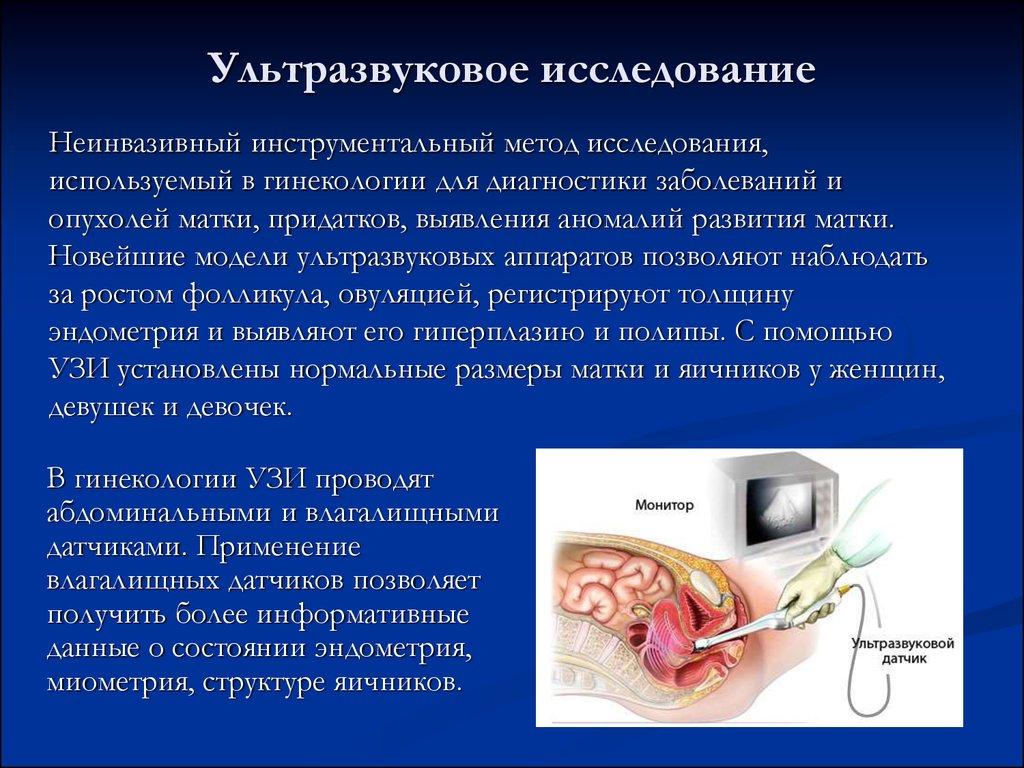Методы диагностики гинекологических заболеваний