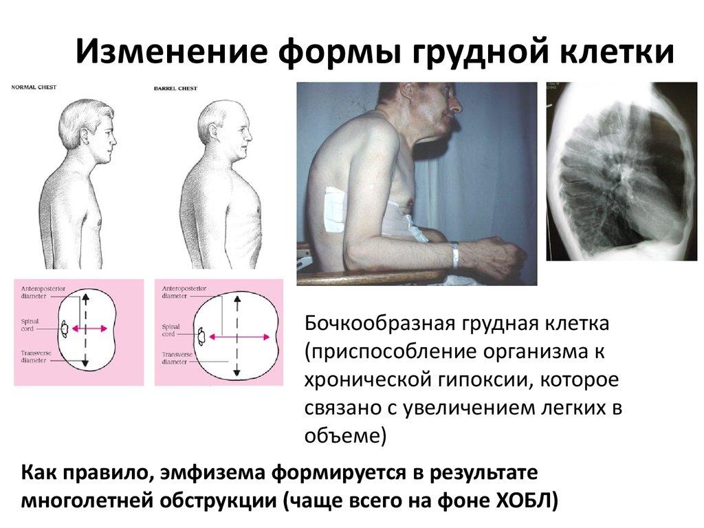 рекомендуется упражнения для расширения грудной клетки поэтому термобелье